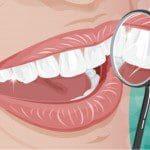 Trucos para blanquear los dientes, consejos para blanquear los dientes, datos para blanquear los dientes, tips para blanquear los dientes, recomendaciones para blanquear los dientes, ejemplos para blanquear los dientes, ideas para blanquear los dientes